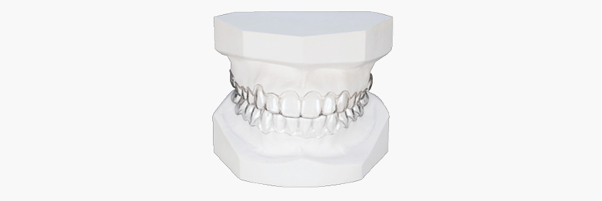 Bleaching And Medicament Trays